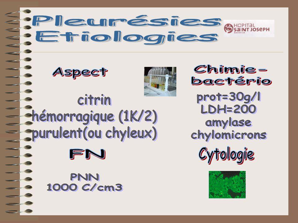 Pleurésies Etiologies. Pleurésies. Etiologies. Chimie- bactério. Aspect. prot=30g/l. LDH=200.
