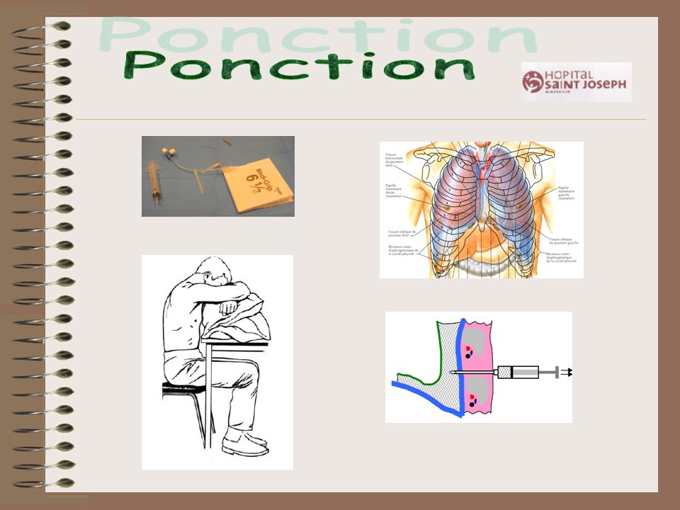 Ponction