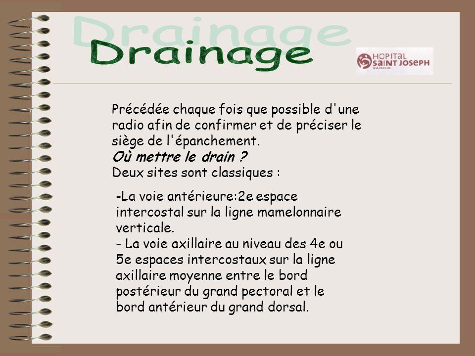 Drainage Précédée chaque fois que possible d une radio afin de confirmer et de préciser le siège de l épanchement.