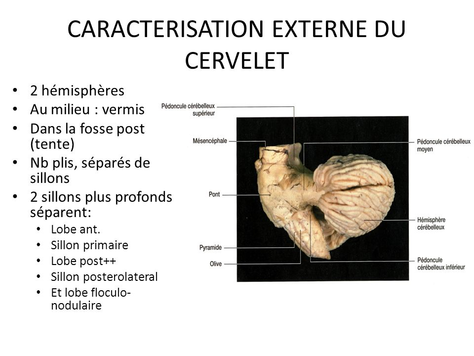 CARACTERISATION EXTERNE DU CERVELET