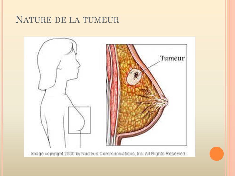 Nature de la tumeur