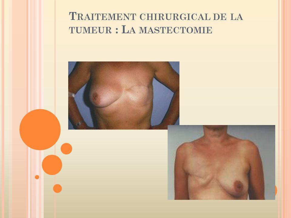 Traitement chirurgical de la tumeur : La mastectomie
