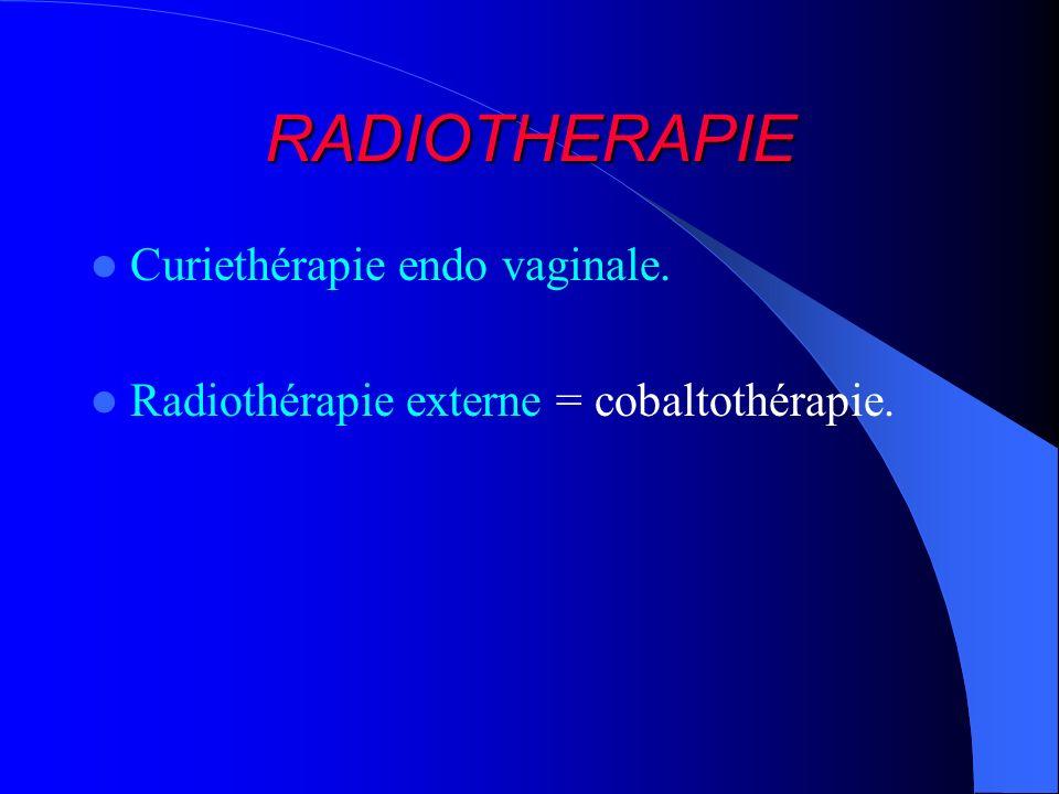 RADIOTHERAPIE Curiethérapie endo vaginale.