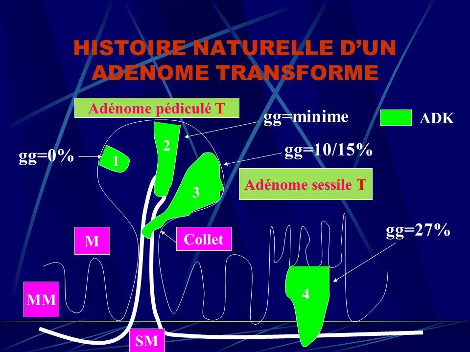 HISTOIRE NATURELLE D'UN ADENOME TRANSFORME