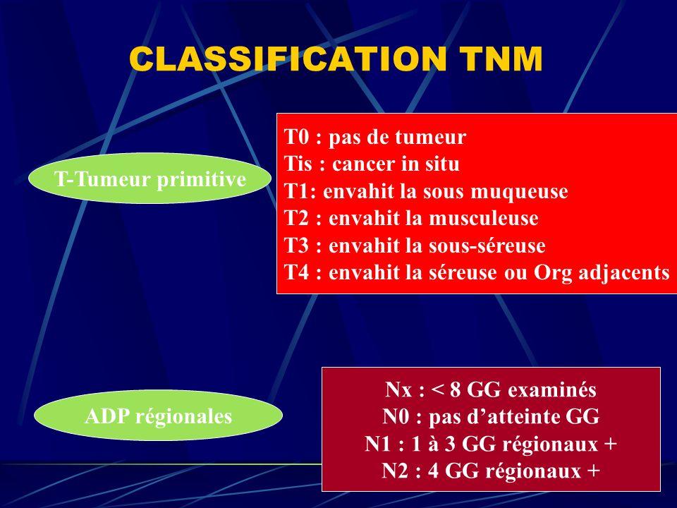 CLASSIFICATION TNM T0 : pas de tumeur Tis : cancer in situ