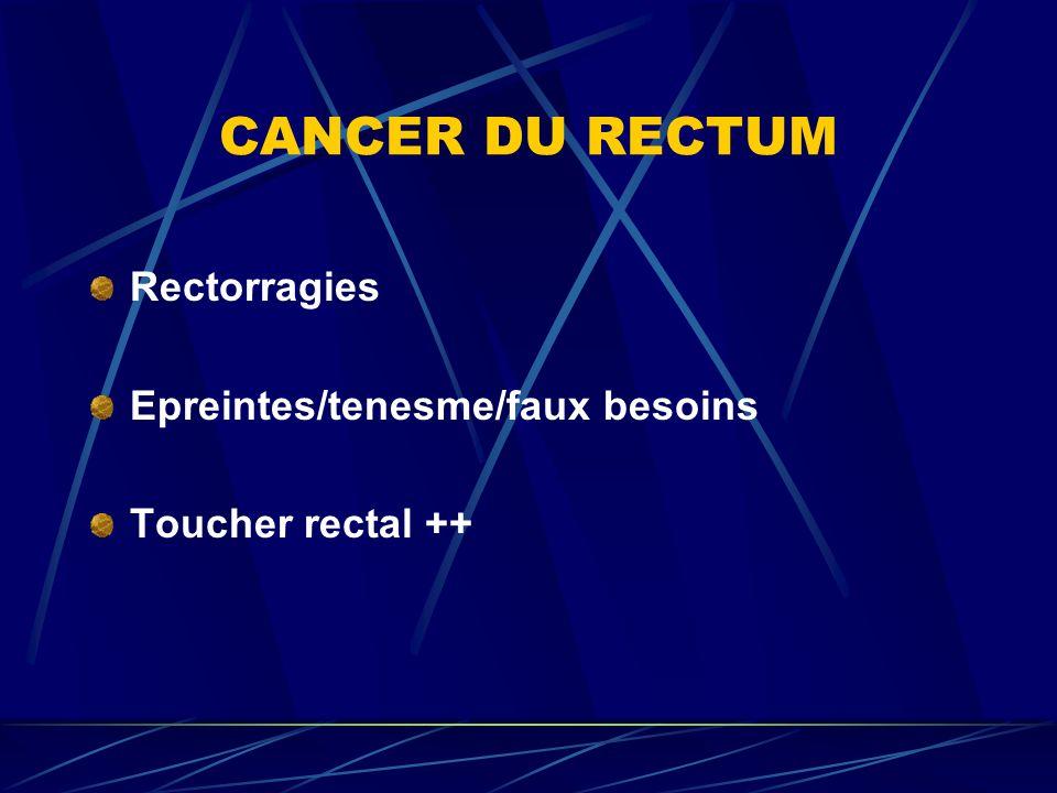 CANCER DU RECTUM Rectorragies Epreintes/tenesme/faux besoins