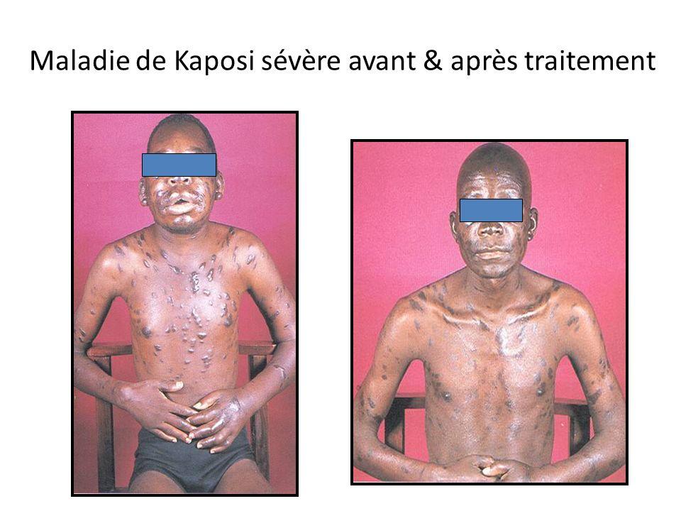 Maladie de Kaposi sévère avant & après traitement