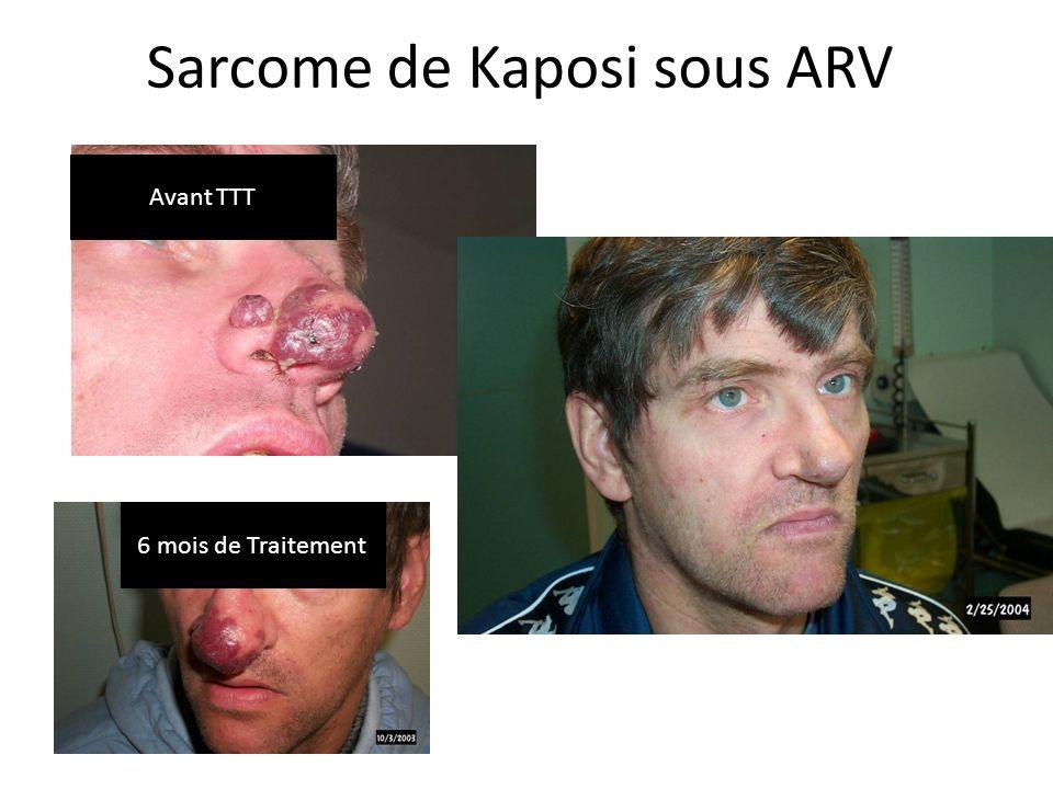 Sarcome de Kaposi sous ARV
