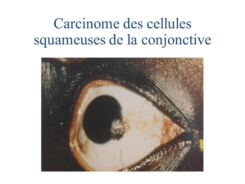 Carcinome des cellules squameuses de la conjonctive