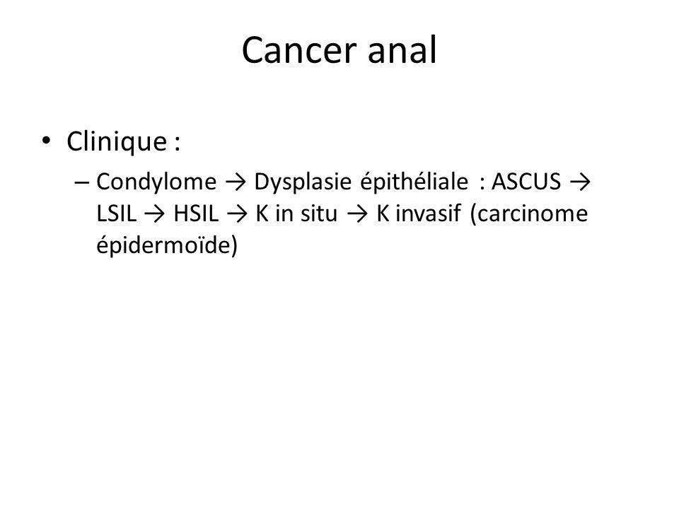 Cancer anal Clinique : Condylome → Dysplasie épithéliale : ASCUS → LSIL → HSIL → K in situ → K invasif (carcinome épidermoïde)