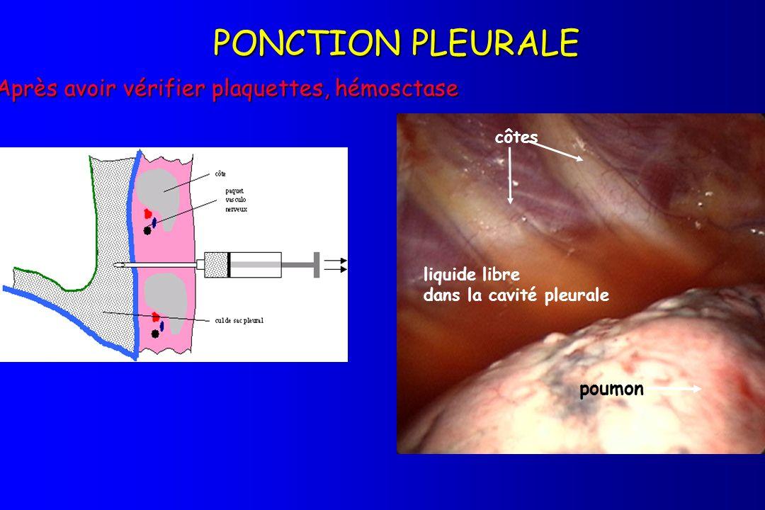 Après avoir vérifier plaquettes, hémosctase