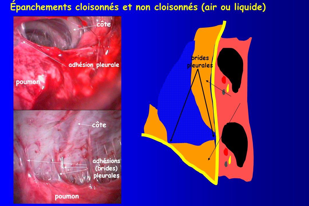 Épanchements cloisonnés et non cloisonnés (air ou liquide)