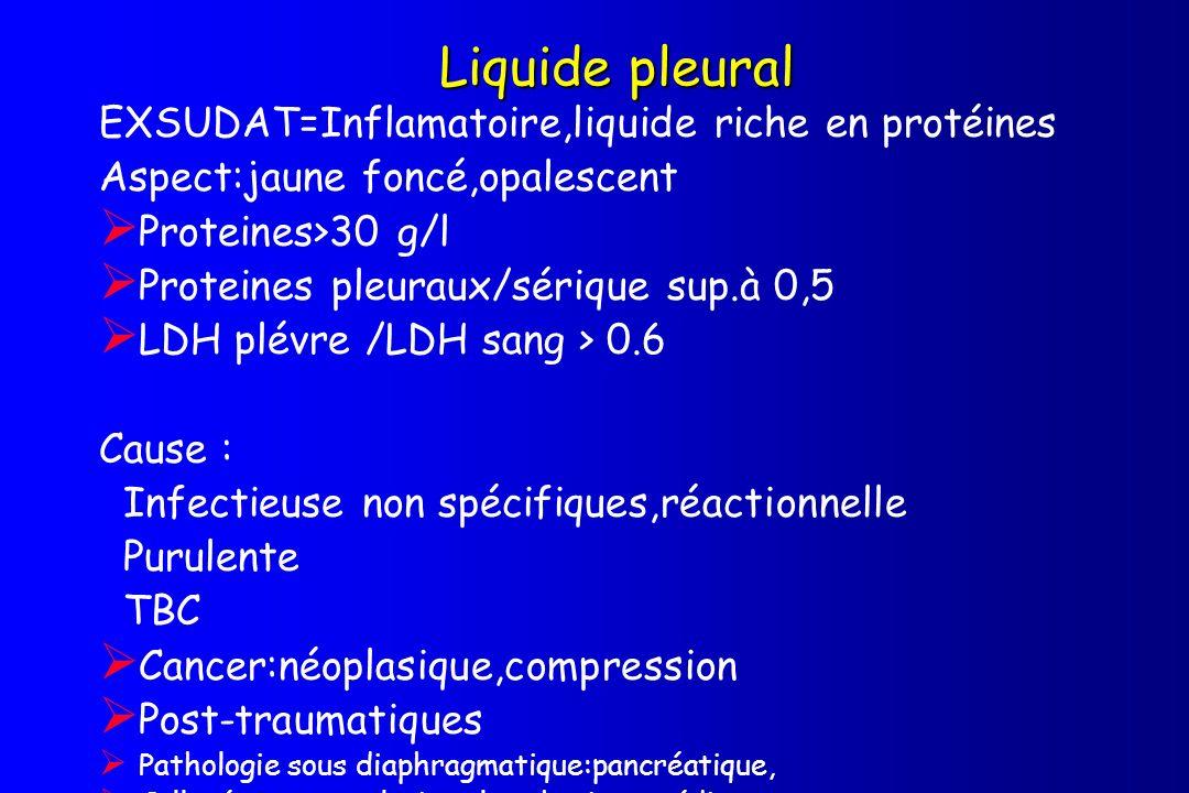 Liquide pleural EXSUDAT=Inflamatoire,liquide riche en protéines