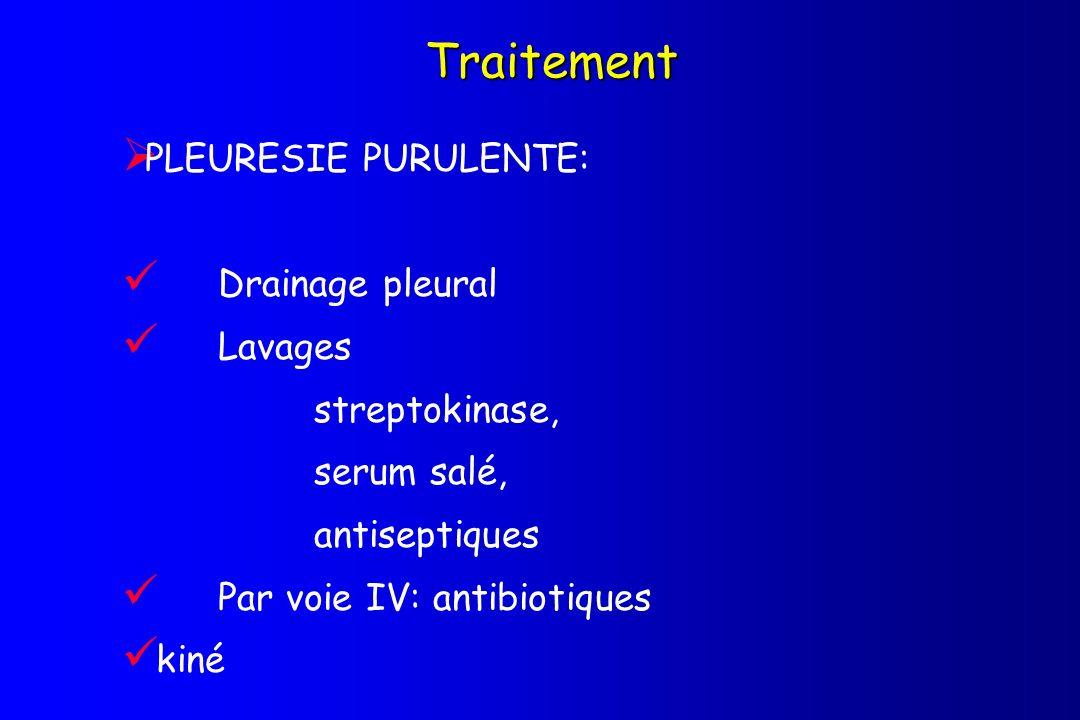 Traitement PLEURESIE PURULENTE: Drainage pleural Lavages