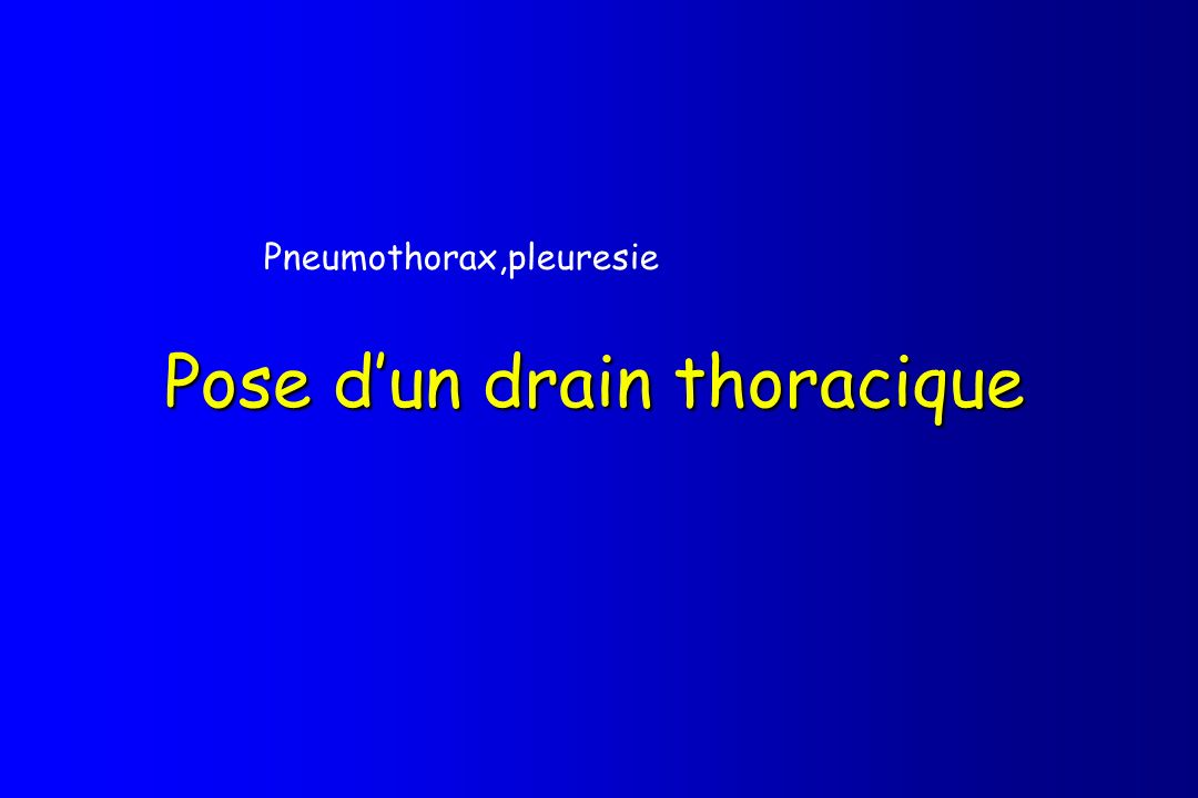 Pose d'un drain thoracique