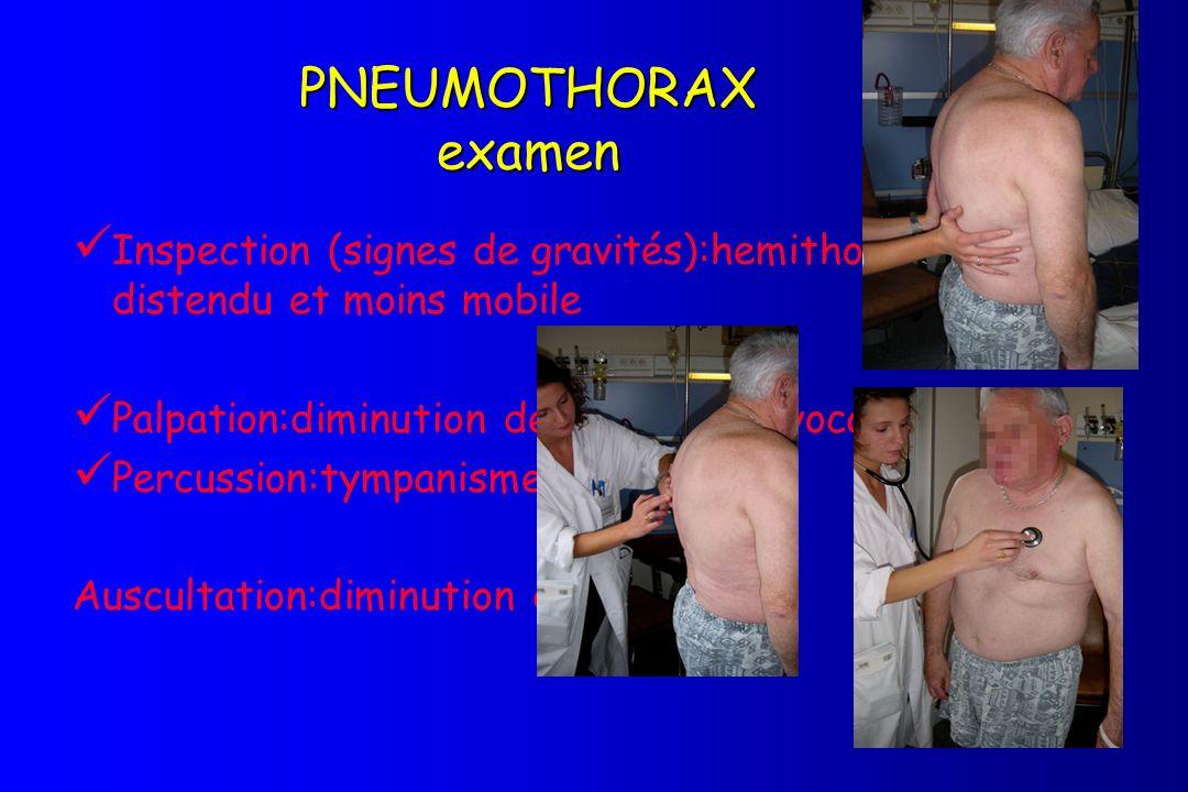 PNEUMOTHORAX examen Inspection (signes de gravités):hemithorax plus distendu et moins mobile. Palpation:diminution des vibrations vocales.