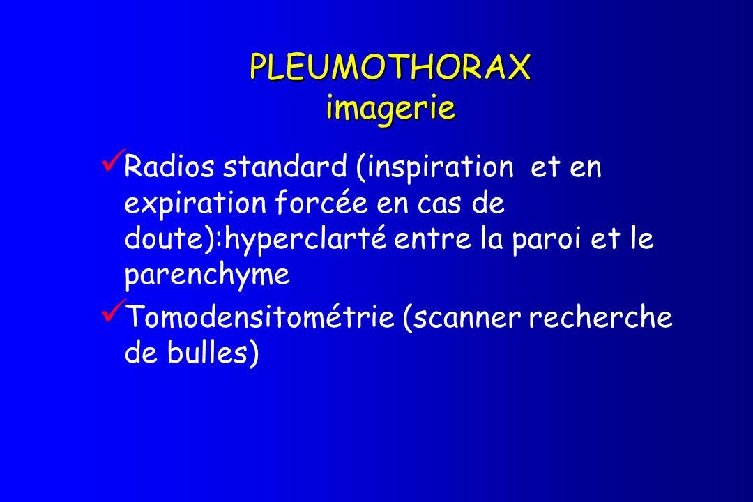 PLEUMOTHORAX imagerie