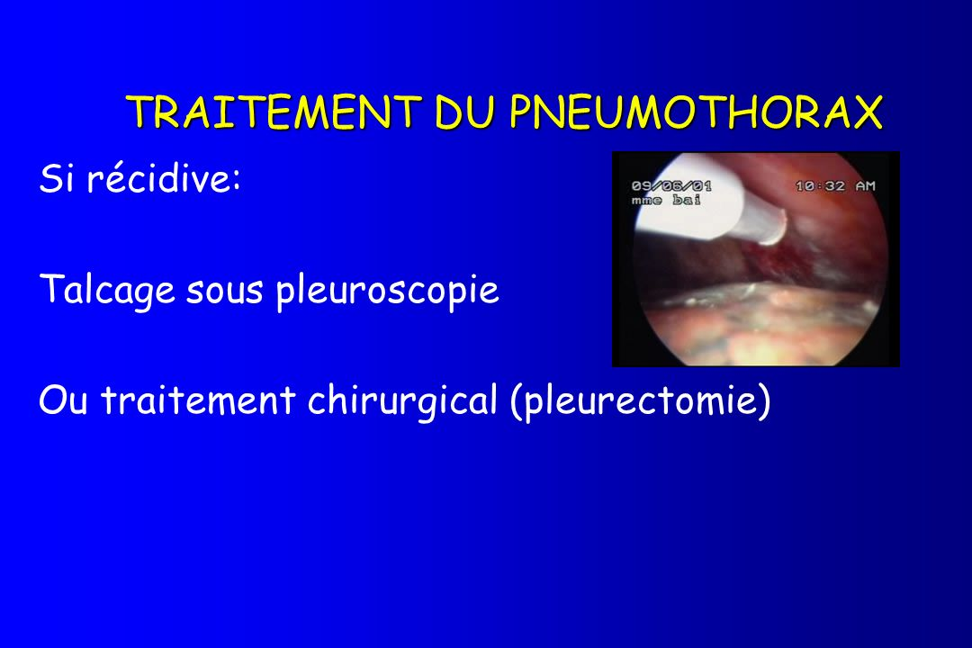 TRAITEMENT DU PNEUMOTHORAX