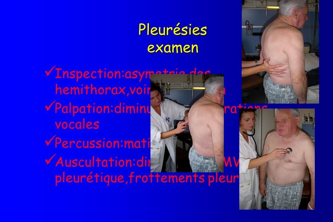Pleurésies examen Inspection:asymetrie des hemithorax,voire distention