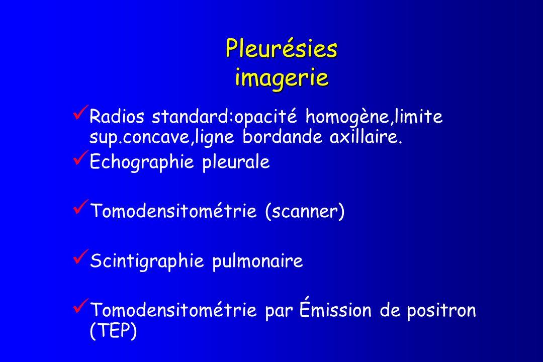 Pleurésies imagerie Radios standard:opacité homogène,limite sup.concave,ligne bordande axillaire. Echographie pleurale.