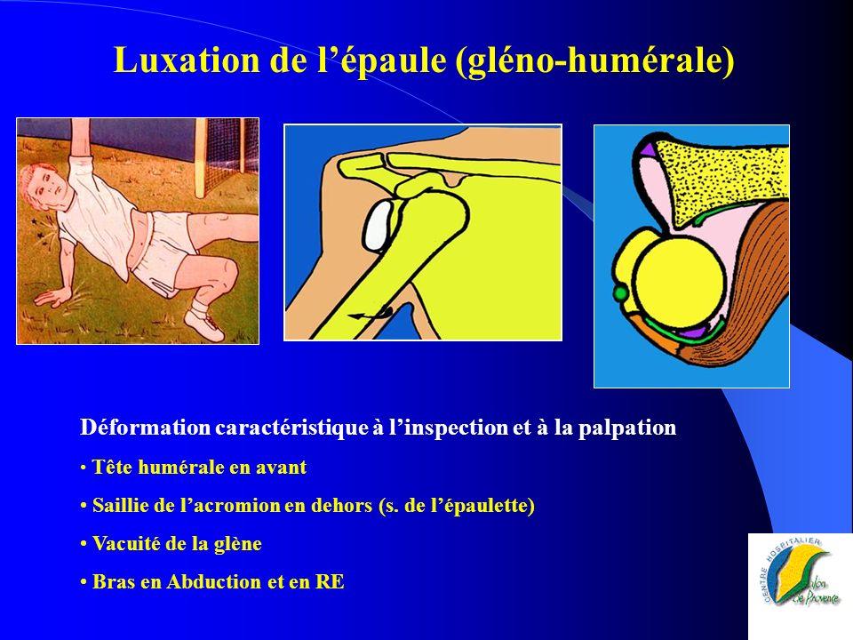 Luxation de l'épaule (gléno-humérale)