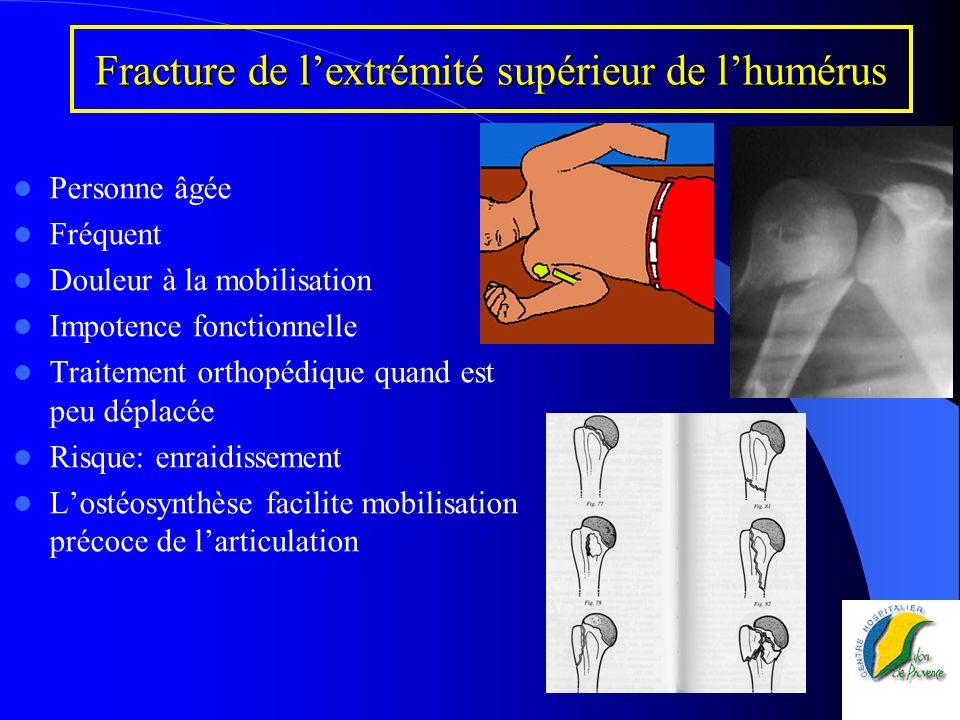 Fracture de l'extrémité supérieur de l'humérus
