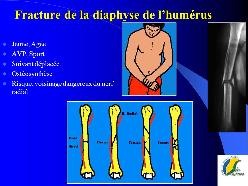 Fracture de la diaphyse de l'humérus
