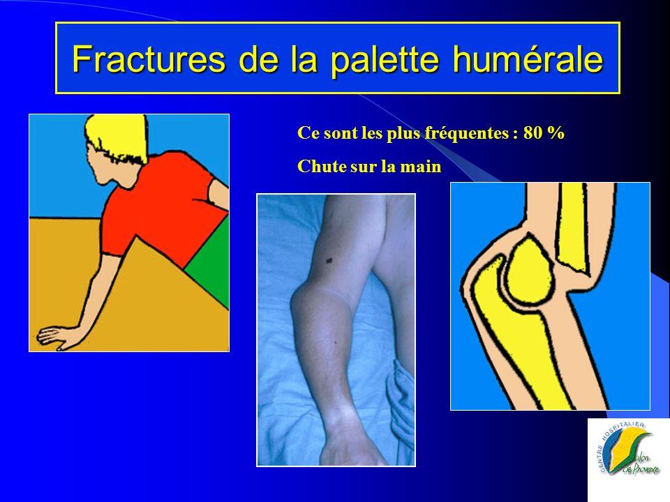 Fractures de la palette humérale
