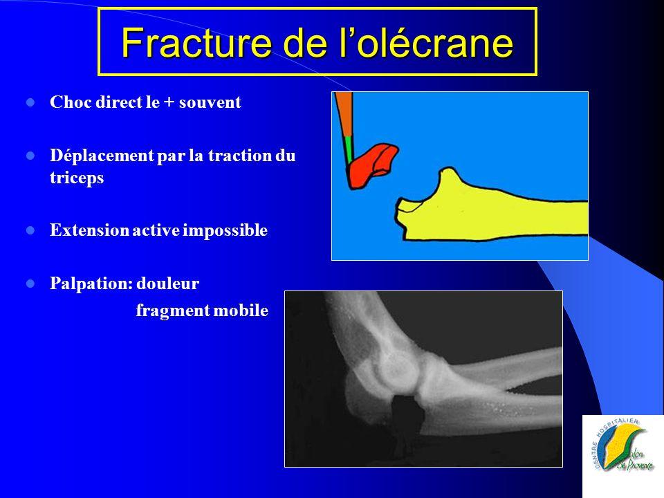 Fracture de l'olécrane