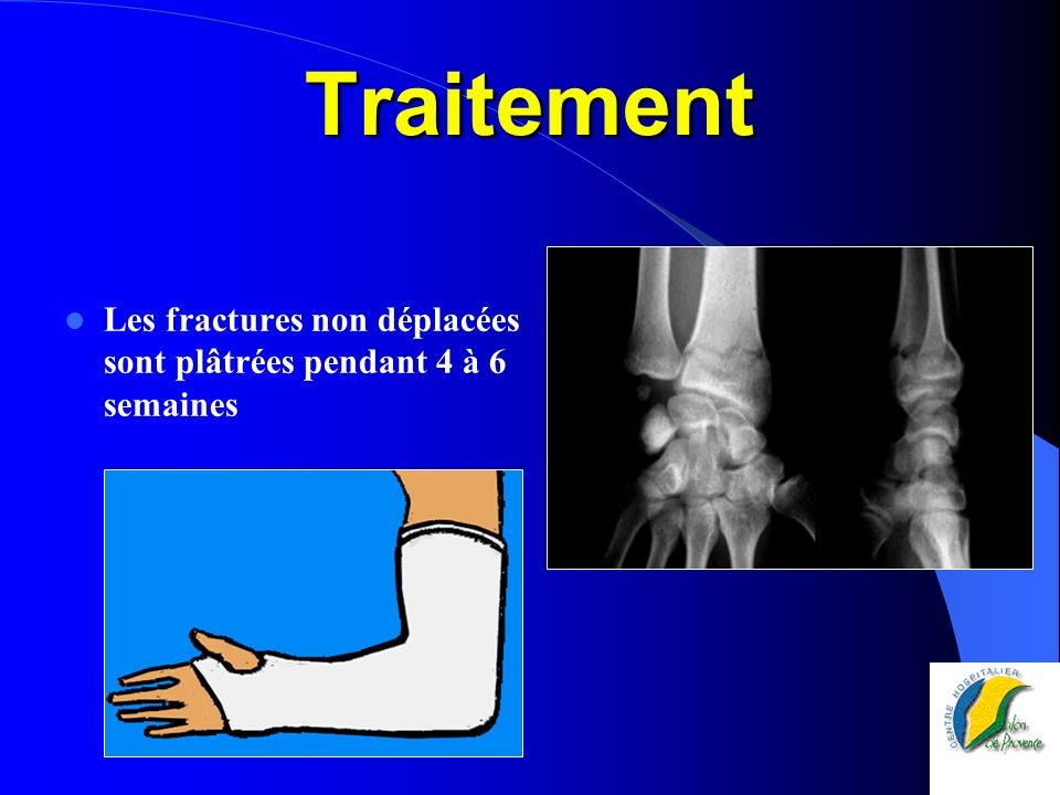 Traitement Les fractures non déplacées sont plâtrées pendant 4 à 6 semaines