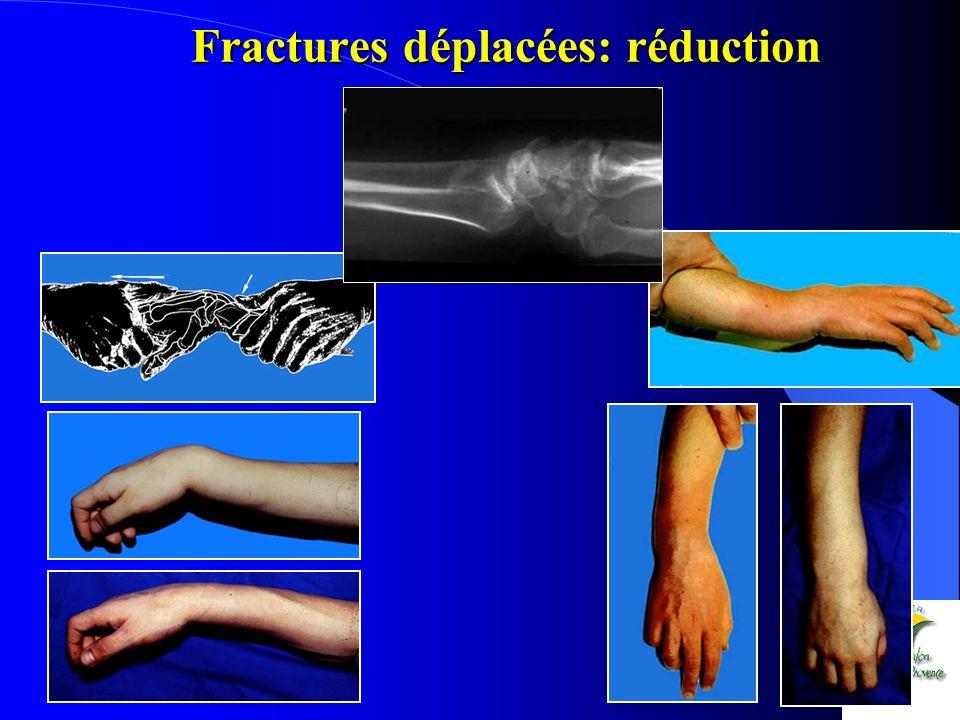 Fractures déplacées: réduction