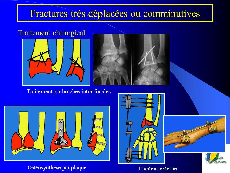 Fractures très déplacées ou comminutives