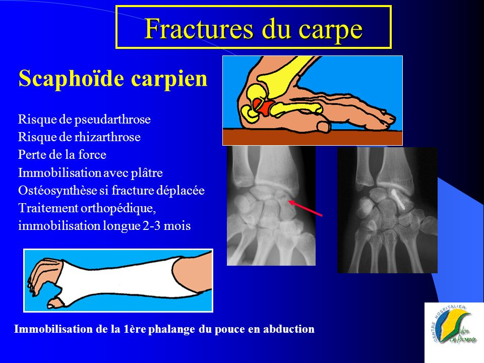 Fractures du carpe Scaphoïde carpien Risque de pseudarthrose