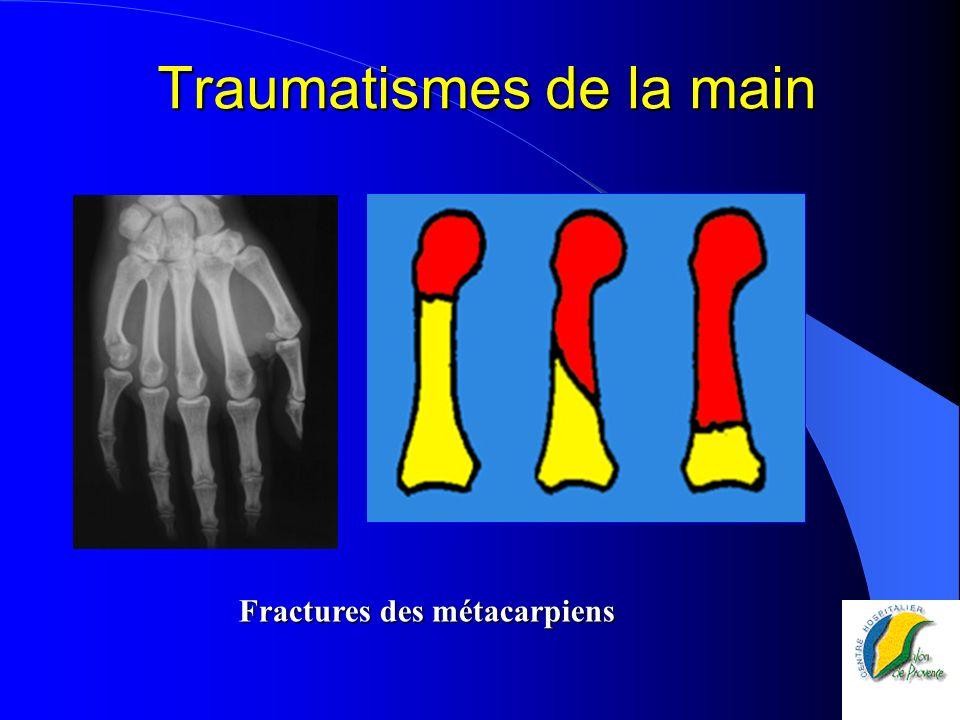 Traumatismes de la main