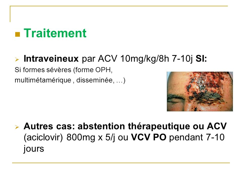 Traitement Intraveineux par ACV 10mg/kg/8h 7-10j SI: