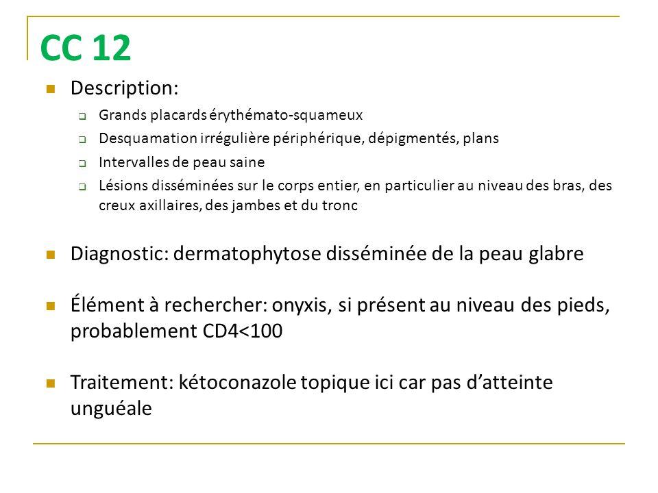CC 12Description: Grands placards érythémato-squameux. Desquamation irrégulière périphérique, dépigmentés, plans.