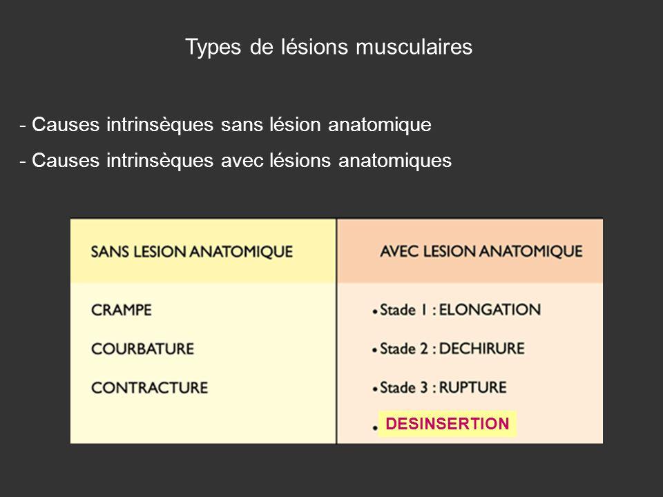 Types de lésions musculaires