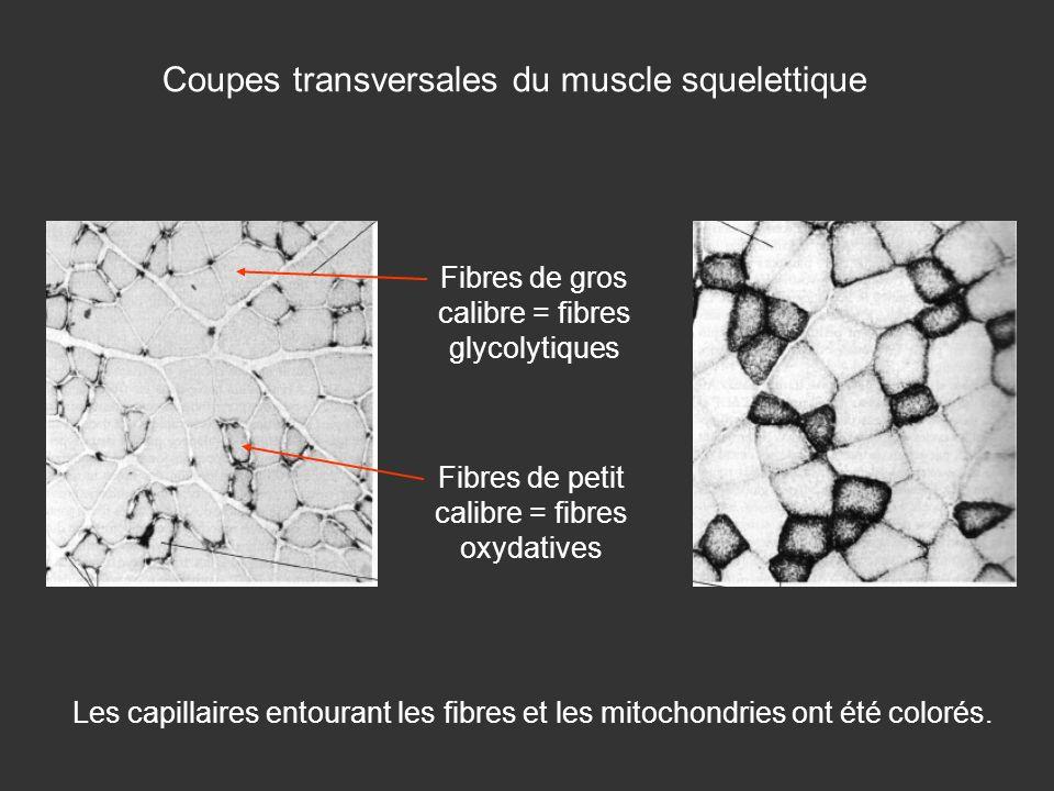 Coupes transversales du muscle squelettique