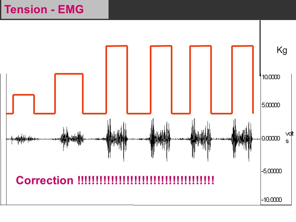 Tension - EMG Kg Correction !!!!!!!!!!!!!!!!!!!!!!!!!!!!!!!!!!!!
