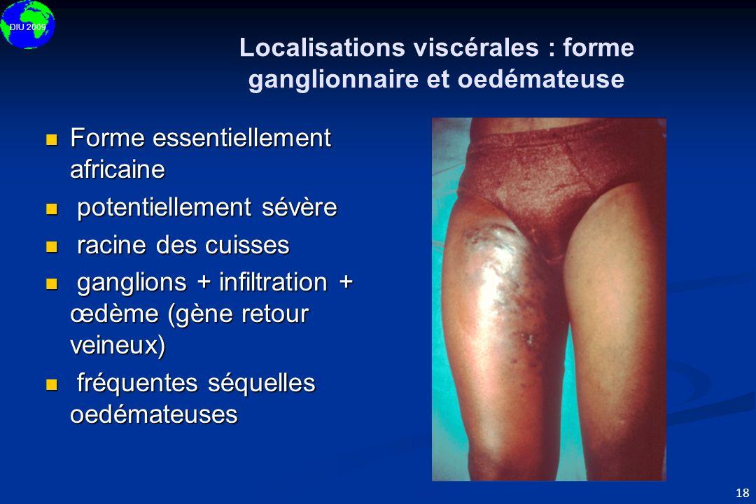 Localisations viscérales : forme ganglionnaire et oedémateuse