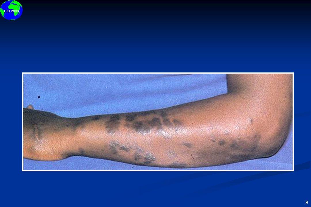 Le cancer affectant le plus fréquemment les personnes séropositives est le sarcome de Kaposi. Il est considéré comme une tumeur d'origine endothéliale d'origine capillaire ou lymphatique. Histologiquement cette tumeur est caractérisée par une prolifération de structures vasculaires accompagnées de cellules endothéliales grossièrement déformées. Une origine infectieuse est supposée (Human Herpesvirus-8). La tumeur est typiquement de forme nodulaire et a un aspect violacé, la taille est extrêmement variable. Le sarcome de Kaposi est une tumeur multicentrique qui touche la peau et les viscères.