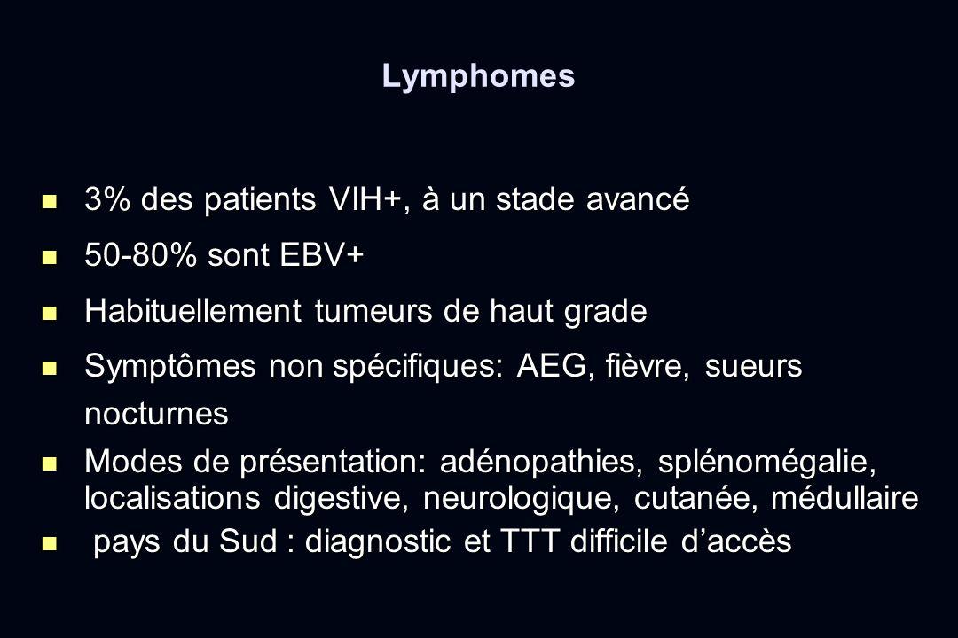 Lymphomes 3% des patients VIH+, à un stade avancé. 50-80% sont EBV+ Habituellement tumeurs de haut grade.