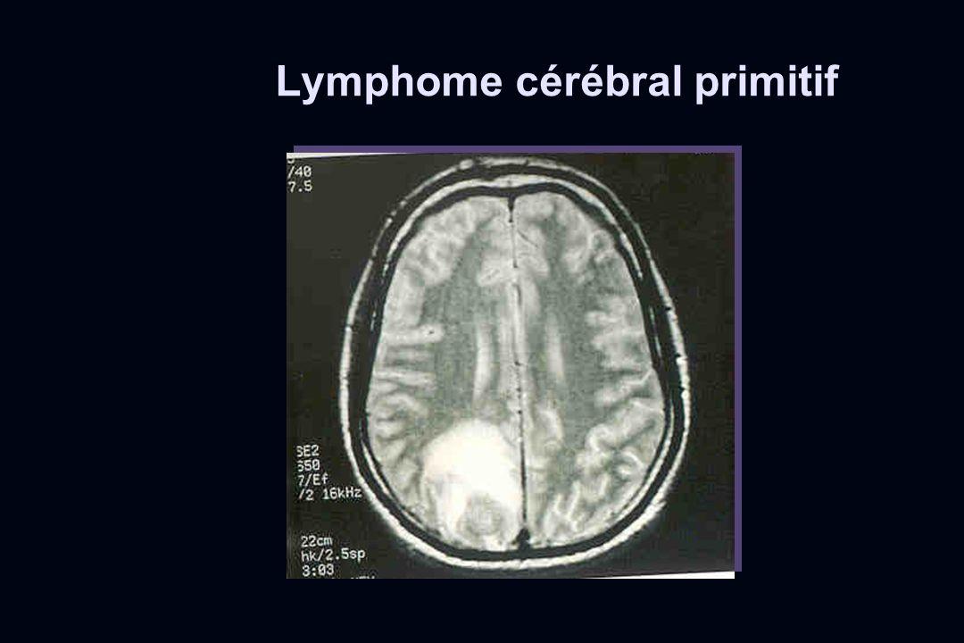 Lymphome cérébral primitif