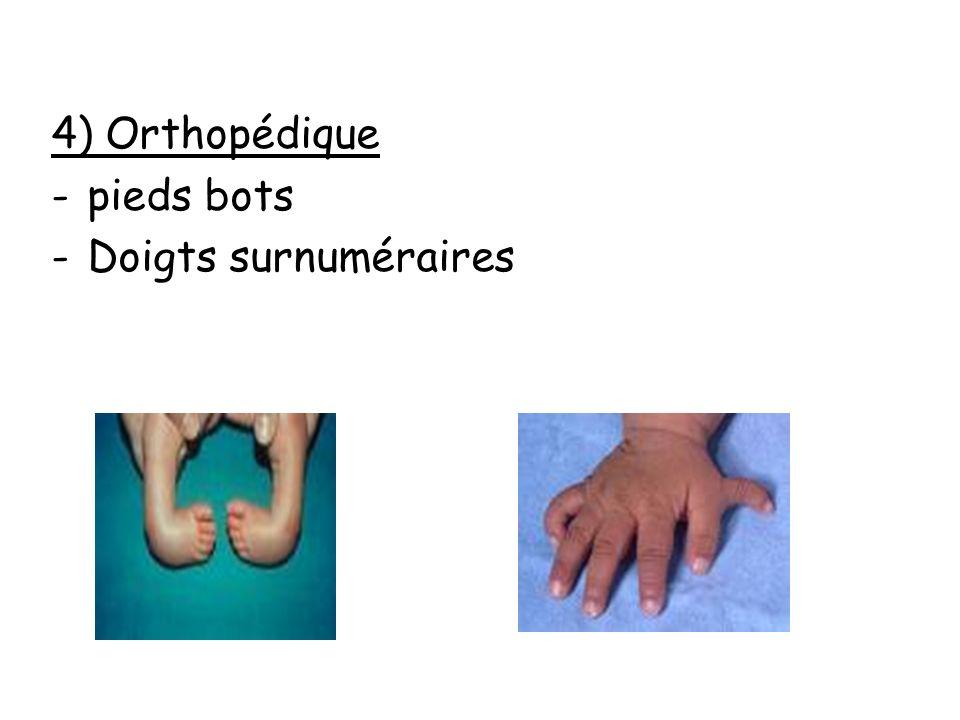 4) Orthopédique pieds bots Doigts surnuméraires