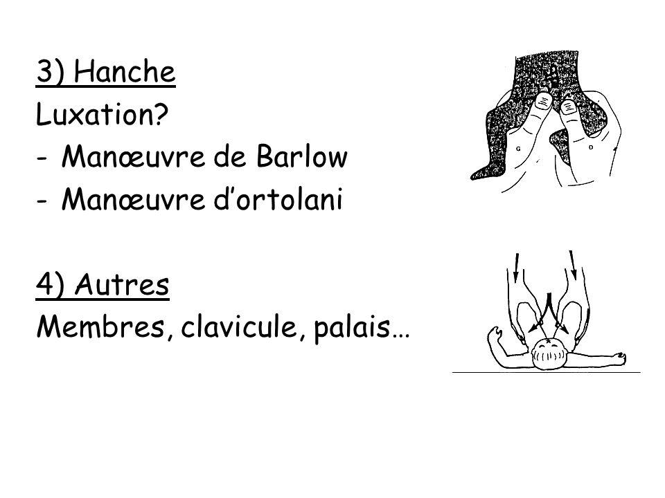 3) Hanche Luxation Manœuvre de Barlow Manœuvre d'ortolani 4) Autres Membres, clavicule, palais…