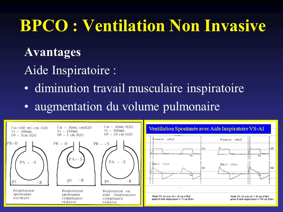 BPCO : Ventilation Non Invasive