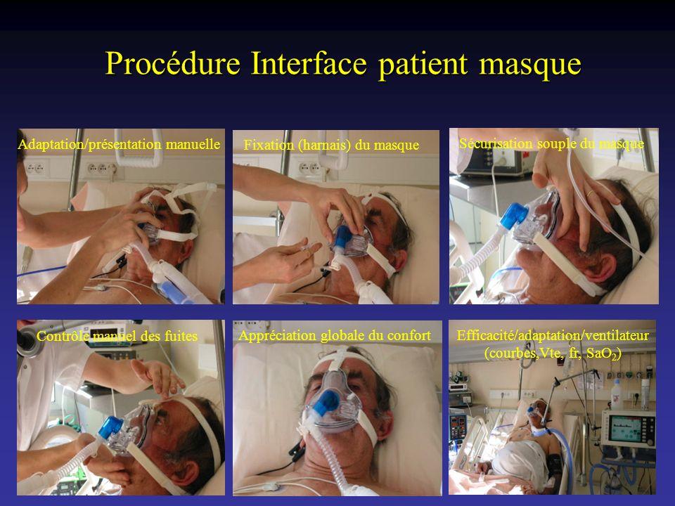 Procédure Interface patient masque