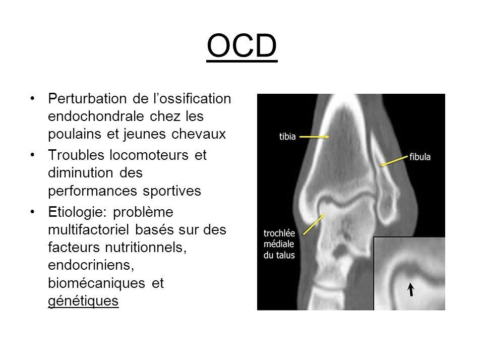 OCD Perturbation de l'ossification endochondrale chez les poulains et jeunes chevaux. Troubles locomoteurs et diminution des performances sportives.