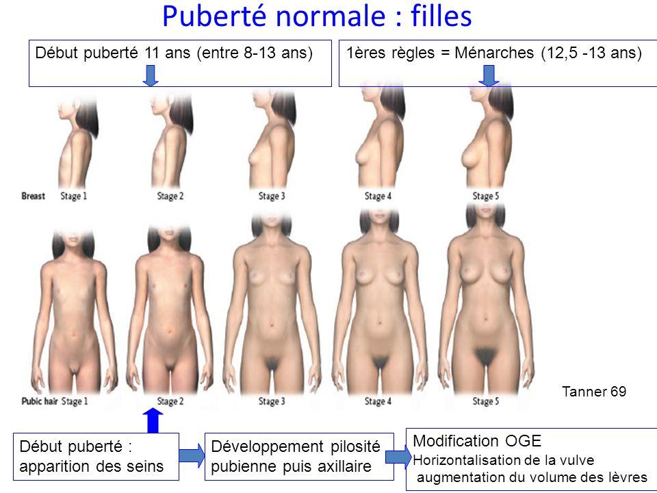Puberté normale : filles