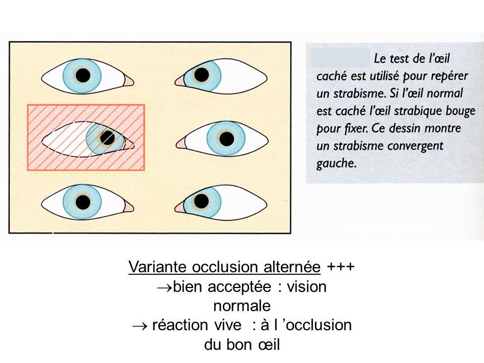 Variante occlusion alternée +++ bien acceptée : vision normale